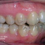 paciente en tratamiento de ortodoncia invisalign