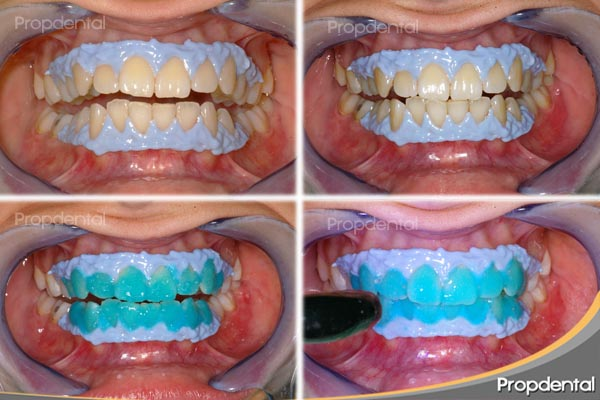 Blanqueamiento dental en la clínica