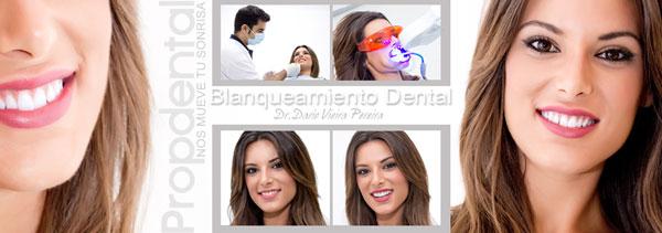 blanquear los dientes en el dentista