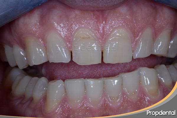 Solución dientes desgastados por bruxismo