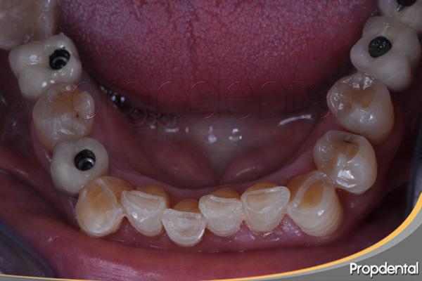 consecuencias de apretar o rechinar los dientes
