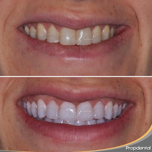 dientes-mas-blancos