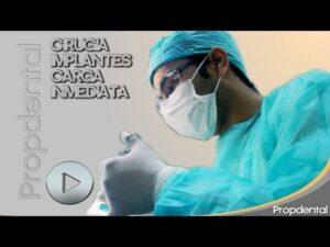 vídeo de la colocación de implantes tras la extracción