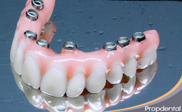 precio prótesis hibrida o metal resina sobre implantes