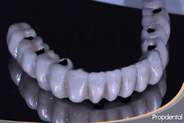 precio prótesis metal porcelana sobre implantes