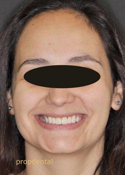 estetica dental con protesis de circonio
