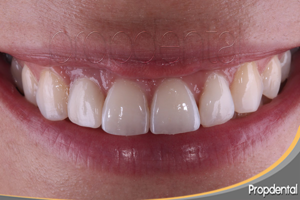 prótesis de circonio sobre implante dental