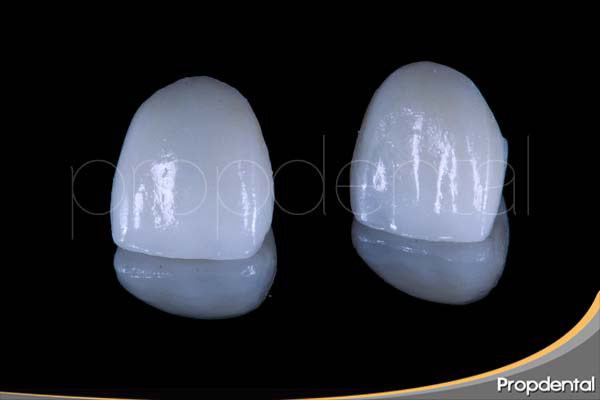 prótesis de circonio