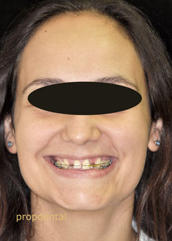 paciente de prótesis dentales