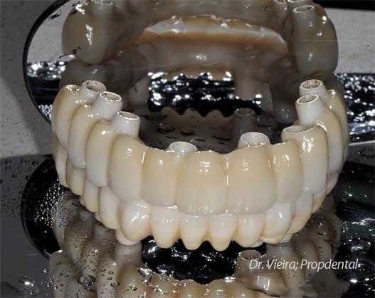 protesis sobre implantes dentales en barcelona