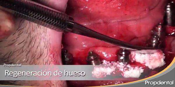 regeneración de hueso
