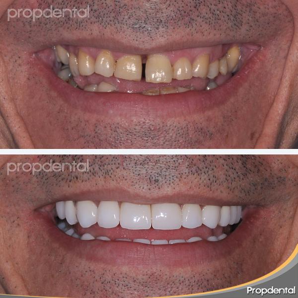 rehabilitación protésica de dientes desgastados