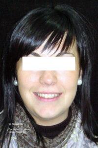 sonrisa paciente con ortodoncia invisible