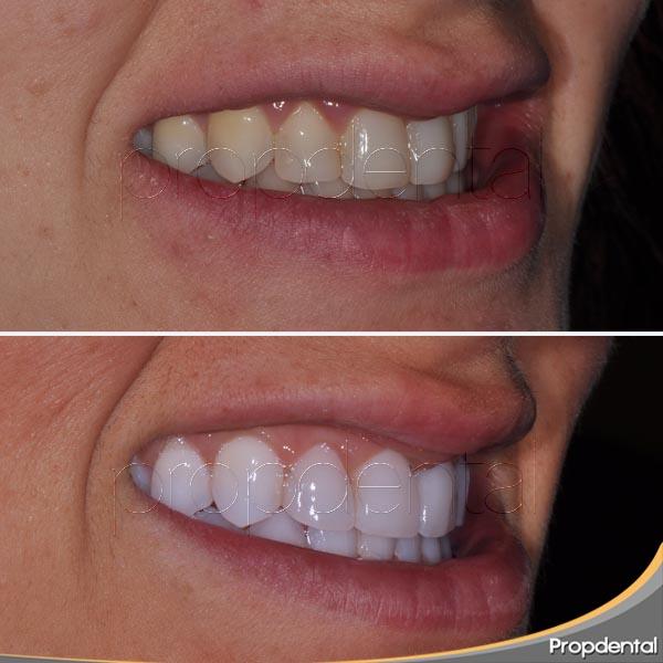 sin-tallar-dientes