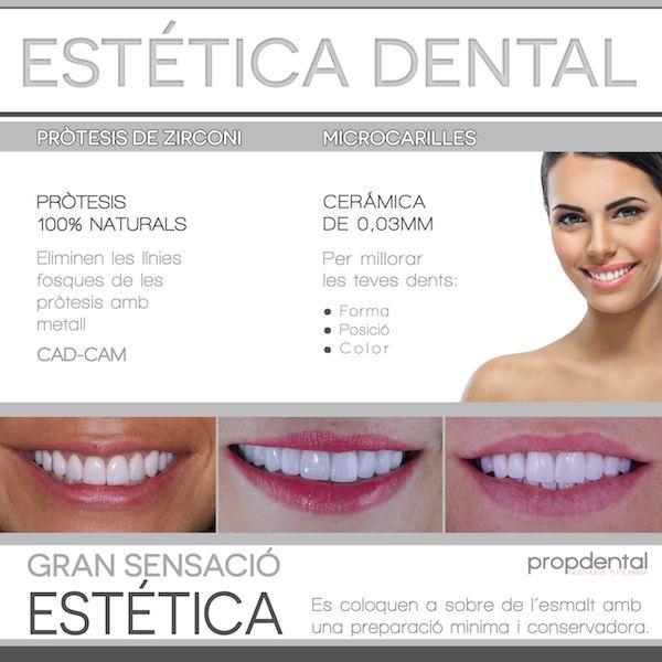 tratamientos de estética dental