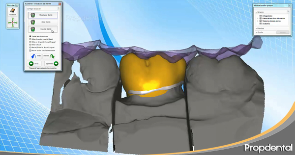 cad cam de una prótesis dental