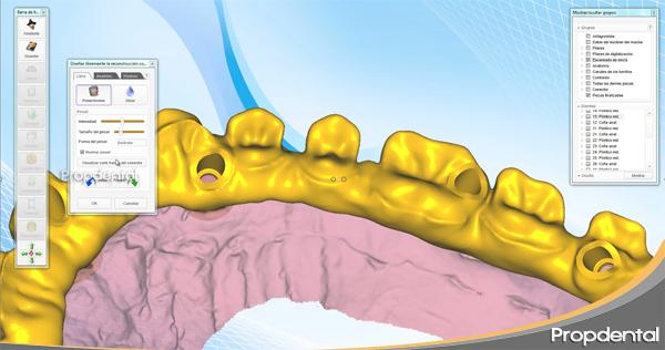 cadcam de una rehabilitación de prótesis de circonio sobre implantes dentales