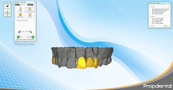 diseño de coronas cad cam dental