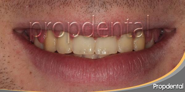 dientes amarillos