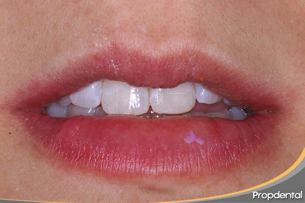 caso clínico de microabrasión dental