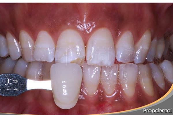 machas blancas en los dientes