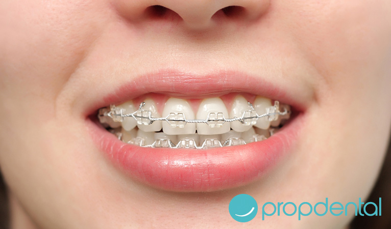 ortodoncia con brackets en Barcelona