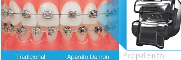 ortodoncia con sistema damon