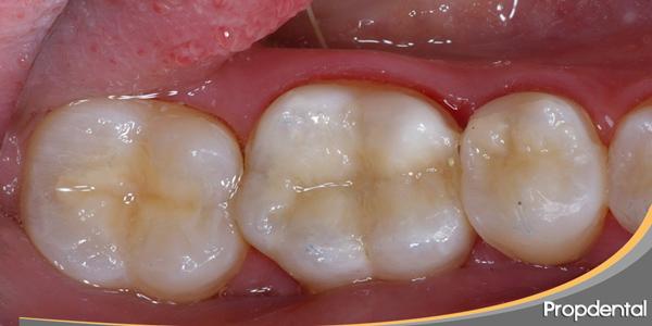 precio reconstrucción de composite dental