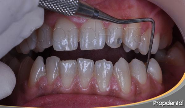 Sangrado al sondaje periodontal