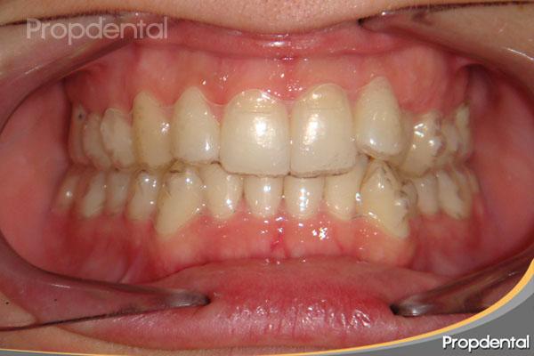 alineadores transparentes de ortodoncia invisible