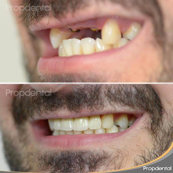 ausencia de dientes superiores