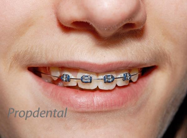 precio brackets de ortodoncia