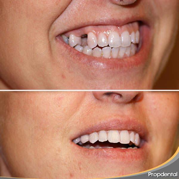 caso del implante de un diente fijo