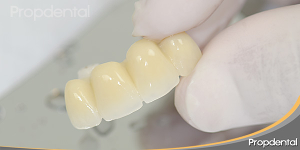 dientes fijos anteriores
