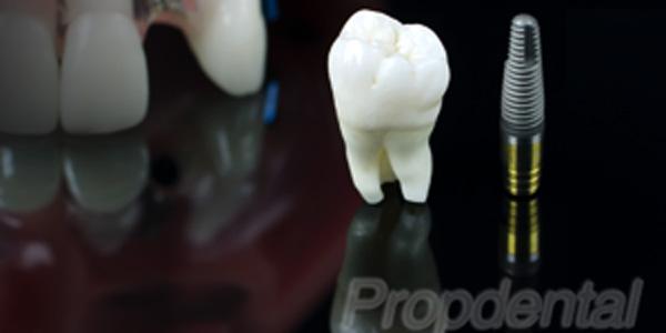 diferencias entre implantes y dientes