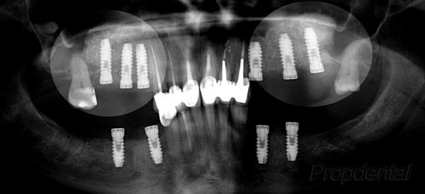 implantes dentales colocados en el seno maxilar