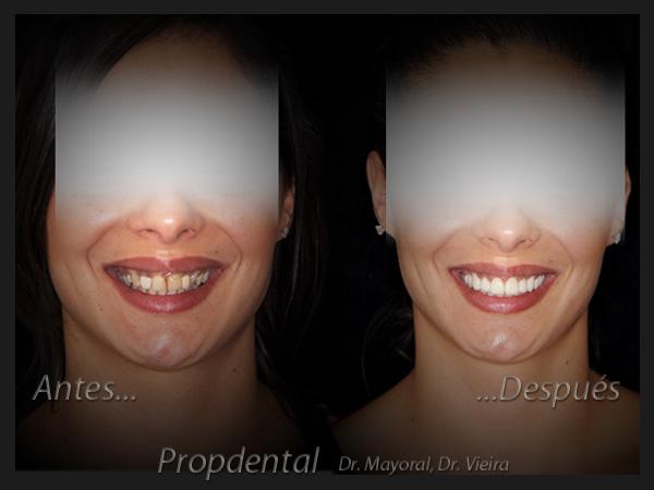 Plan de tratamiento de estética dental