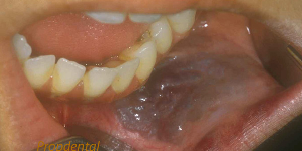 hemangioma dental