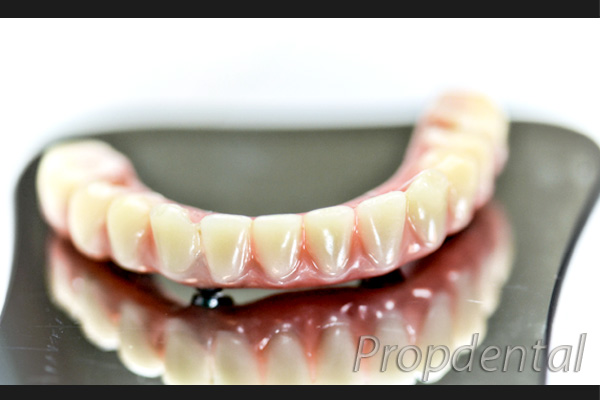prótesis hibrida sobre implantes dentales