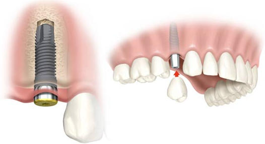 hueso deficiente para implantes