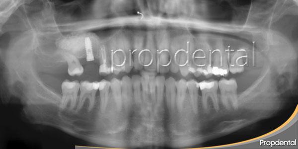 implante después de elevación maxilar