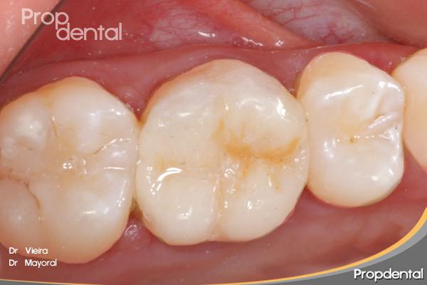 caso clinico de incrustaciones dentales tipo onlay
