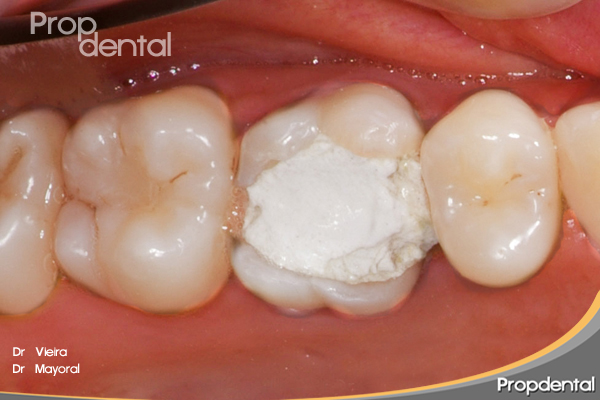 incrustación dental onlay para rehabilitar diente endodonciado
