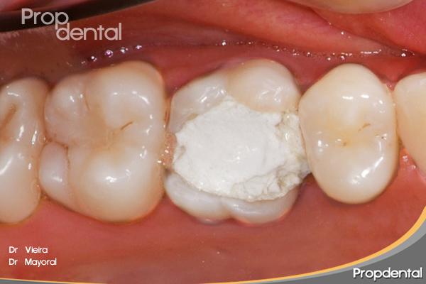 incrustación dental onlay para rehabilitar diente endodonciado