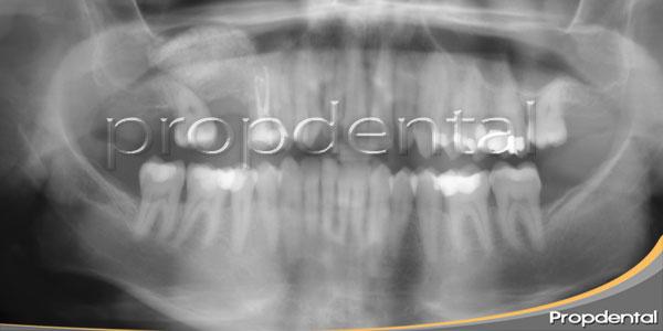 injerto de hueso maxilar superior
