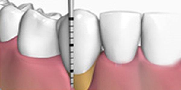mantemiento periodontitis juvenil