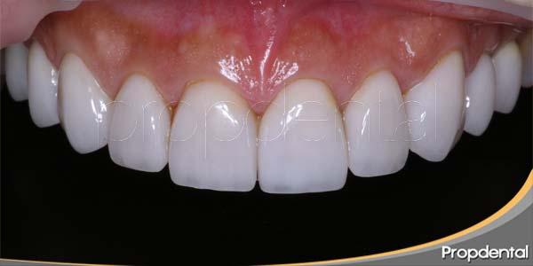 microcarillas dentales en Barcelona