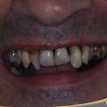 movilidad dental