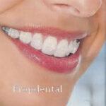 ortodoncia estética con brackets de zafiro