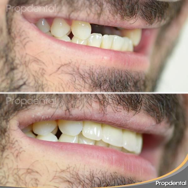 paciente sin dientes incisivos antes y después